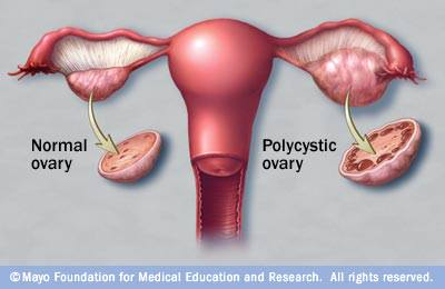 abnormal ovarian cysts types causes and treatments